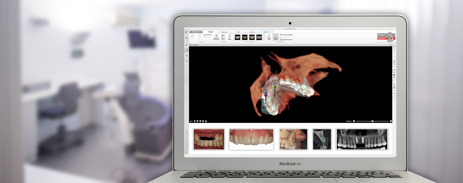 navigierte-implantologie